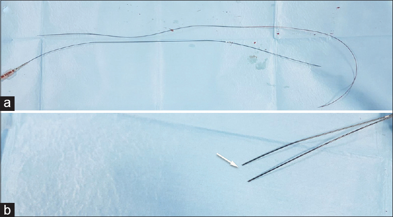 Figure 1: (a) Two broken parts of the whole coronary stent catheter. (b) The site of catheter break (white Arrow)